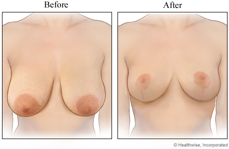 Breast reduction (before and after)