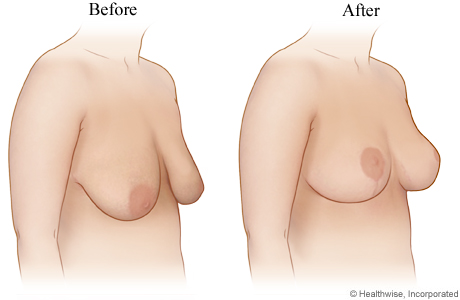 Breast lift (before and after)